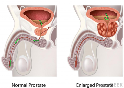 diagram-of-enlarged-prostate_11